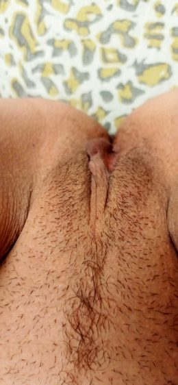 Little Bit Hairy 😜 Young Mom Of Two